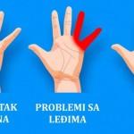 ruke-problemi
