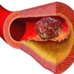 tromb-krvni-ugrusak