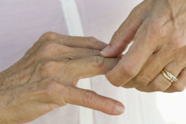 artritis-ruke