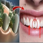 bakterije-zadah