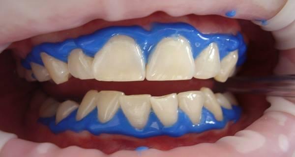 bez-odlaska-zubaru