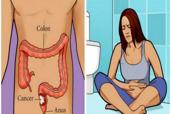 rak-debelog-crijeva