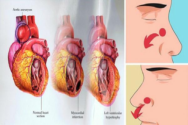 Ovo opasno stanje ima svaka četvrta osoba a simptome niko ne primjećuje!