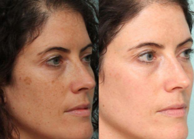 Uklonite tamne fleke sa lica: Za par dana imaćete kožu kao beba! (RECEPT)  L...