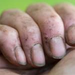 ruke-prljave