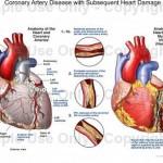 Simptomi da su vam vene i arterije zakrčene: Sprečite katastrofalne posljedice!