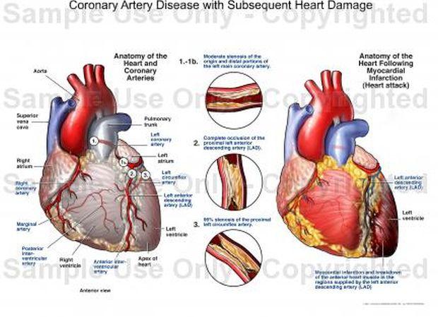 arterije-zakrcene