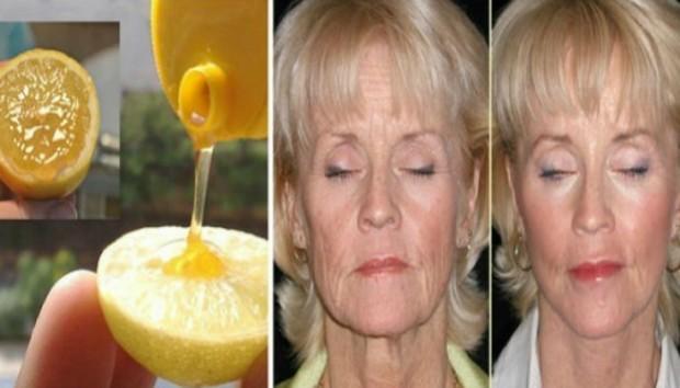 lice-med-limun