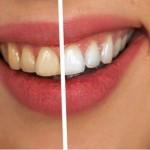 Soda bikarbona i limun štete zubima! Nikad ne biste pogodili šta ih izbjeljuje!