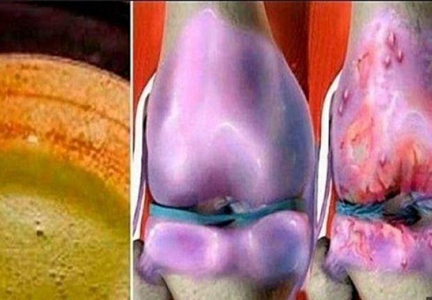 koljena-regeneracija