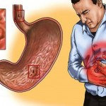 gastritis-zeludac
