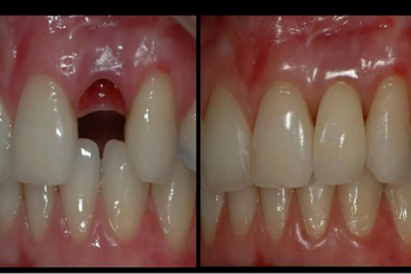 zubi-rastu