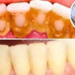 kamenac-zubi