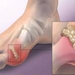 mokracna-kiselina-u-zglobovima-giht-lecenje-i-simptomi