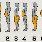 tipovi-gojaznosti