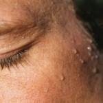 znojenje-osoba