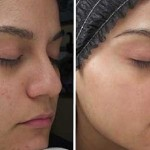dermatolozi-maska