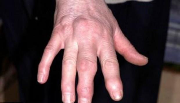 ruka-bolna