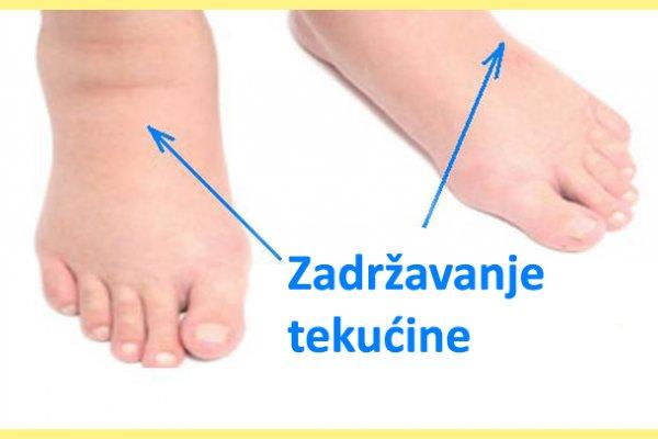 natkle-noge