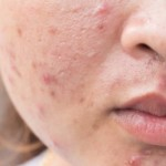 akne-lice