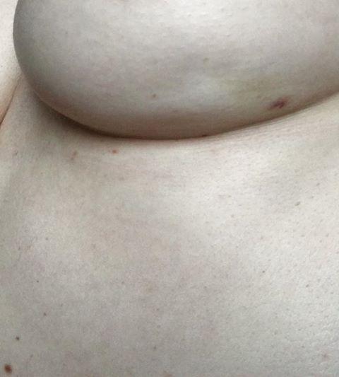 rak-lijeva dojka