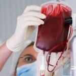 Transfuzija-krvi