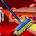 arterije-ciscenje