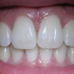 zubi (1)