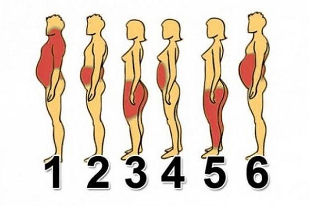 gojaznost-ljudi