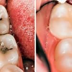 karijes-zubi