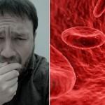 simptomi-ugrusak