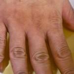 sirce ruke 1
