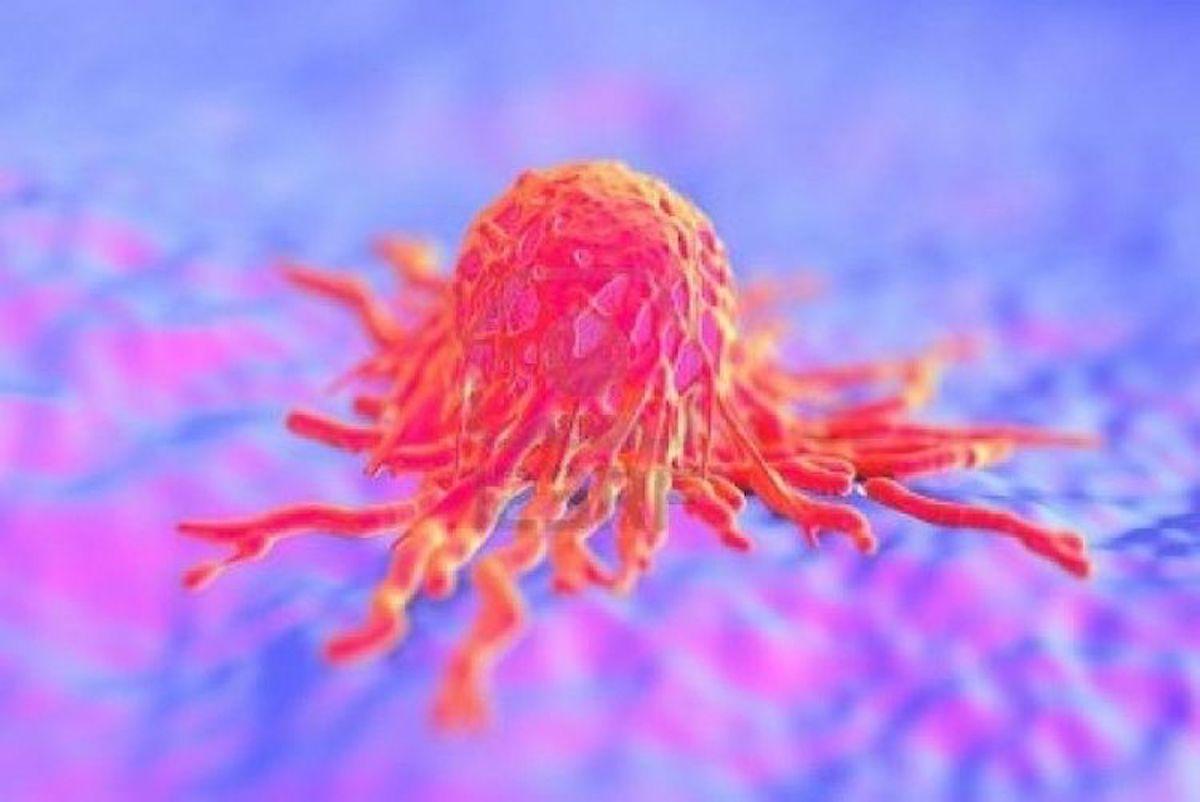 1 karcinom