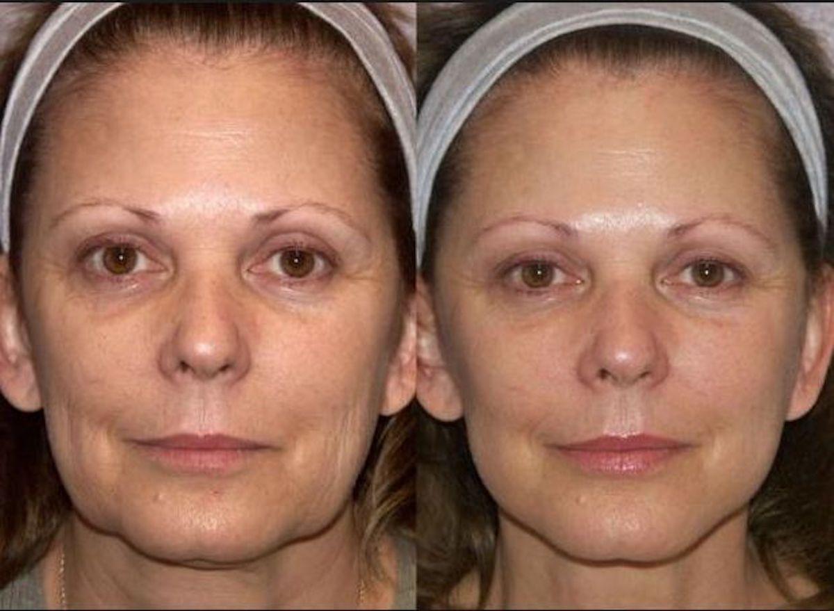 lice-zatezanja
