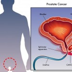 kancer prostata