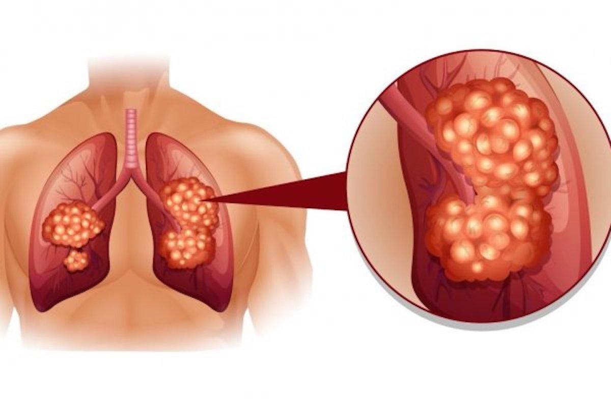 VAŽNO!!! POZNATI PULMOLOG SAVJETUJE: Ovako ojačajte kapacitet pluća najprostijom vježbom disanja – Ovu tehniku savjetuje svim svojim pacijentima!