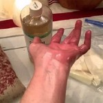 ricinusovo-ulje-zglobovi