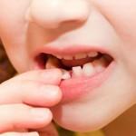 mlijecni-zub