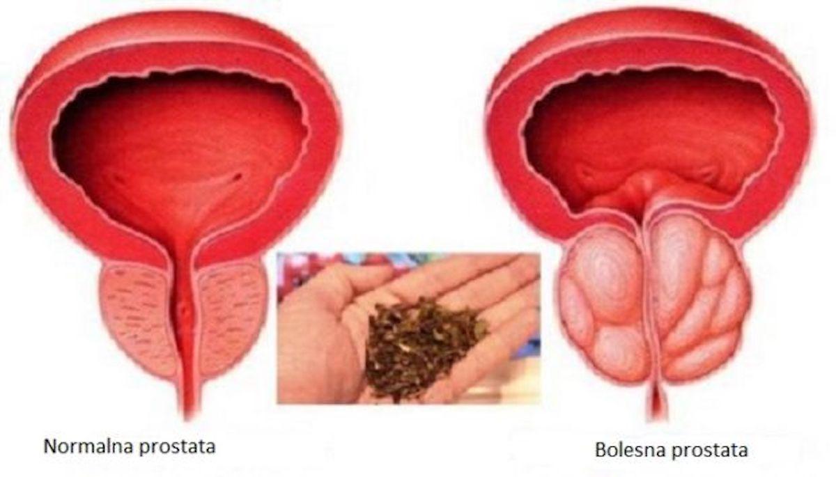 vrbovica prostata