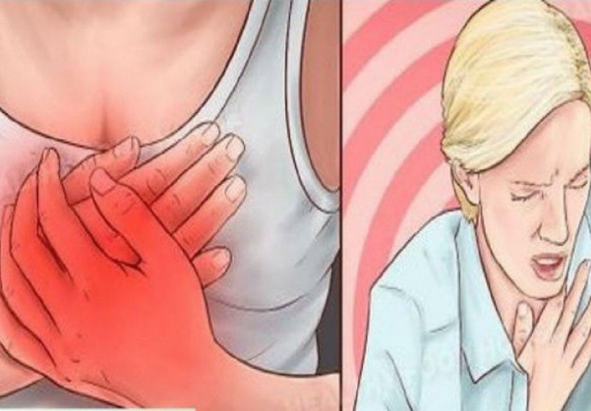 bolest srce