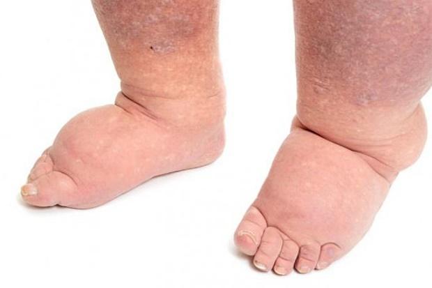 naticanje-nogu