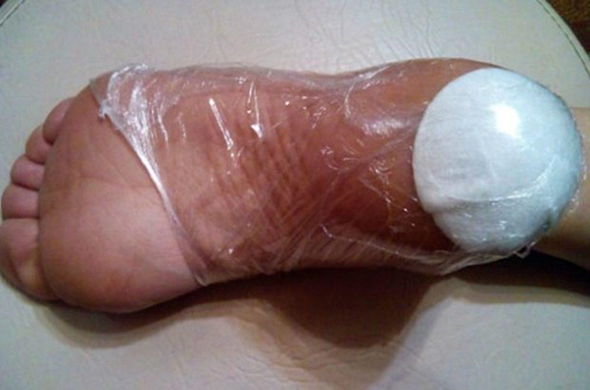 stopala-tretman-f